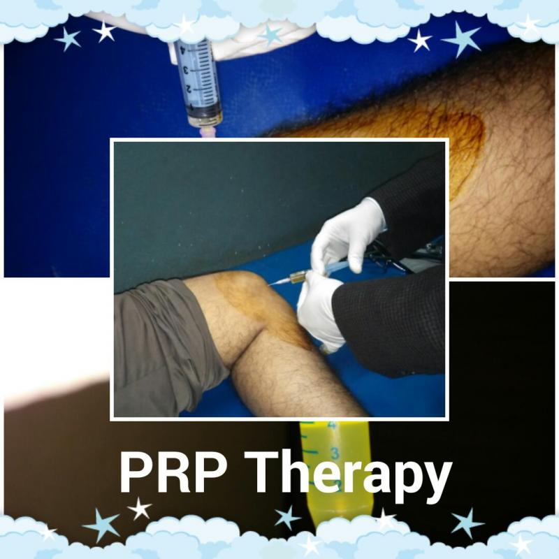 Platelet Rich Plasma Therapy (PRP Therapy)